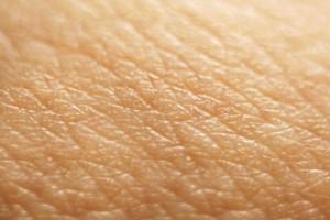 skin-closeup-537x358